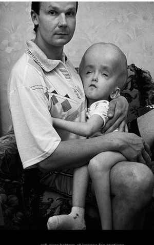 vittima del disastro nucleare di Chernobyl