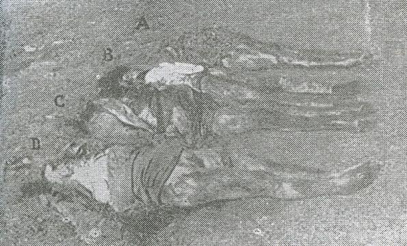 Istria, Foiba di Terli, corpi estratti (Albina, Fosca, Caterina Radecchi, Amalia Ardossi)